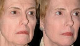 face-lifting-3
