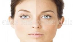 skin-whitening-2