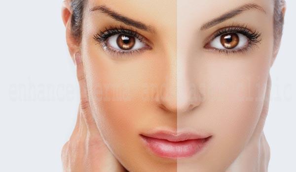 skin-whitening