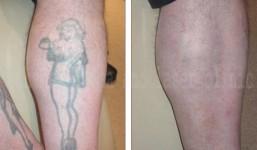tattoo-removal-3